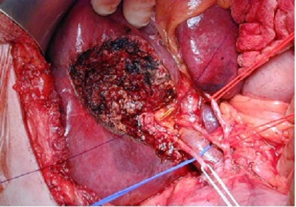 A prospective study of radical cholecystectomy for gallbladder carcinoma