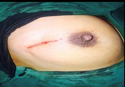 A comparative study of surgical accesses to breast fibroadenoma