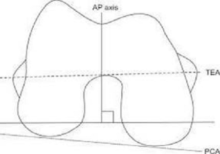 An epidemiological study to calculate angle between transepicondylar axis and posterior condylar axis of distal femur on MRI in Indian population