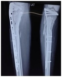 Surgical outcome of ipsilateral fracture of the femur and tibia in adults (floating knee)